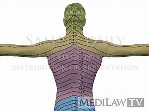 Rheumatology Images Cervical