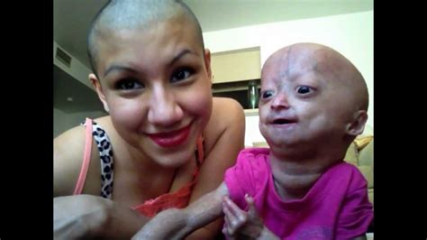 adalia rose mother progeria hair twins natalia twin wig shaved matters head mom she looks michelle roses
