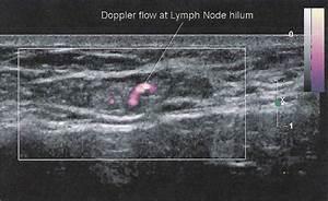 Breast Sonography