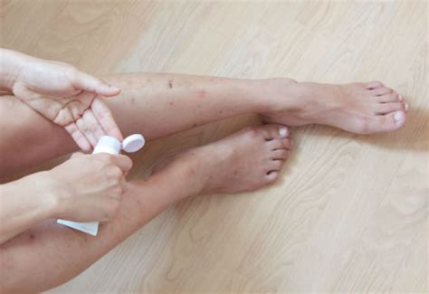 L Flare Up by How To Stop Eczema Flare Up