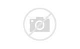 Мази после перелома плечевого сустава