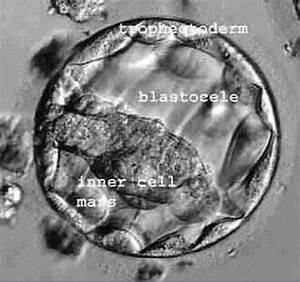 Embryo Transfer  U0026 Blastocyst Transfer San Diego At La