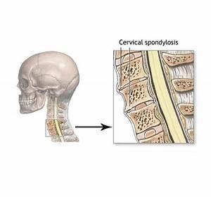 Advanced cervical spondylosis