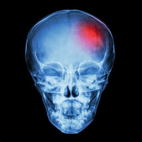 york infant brain injury attorneys infant brain damage