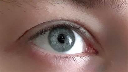 Pupils Dilate Eye Why Response Pupil Opener