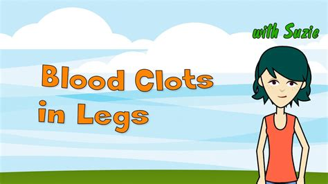 blood clots  legs  recommended ways  treat