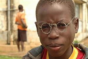 Ugly African Kids | www.pixshark.com - Images Galleries ...