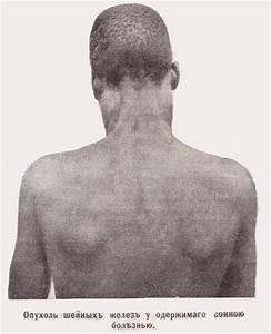 Средства от геморроя при наружных шишках