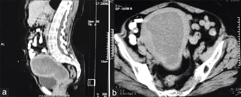 clinical cancer investigation journal browse articles