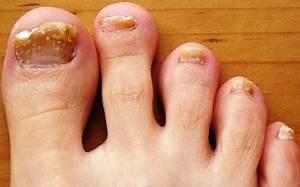 Грибок ногтей лечение димексид