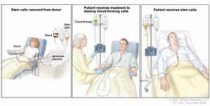 Childhood Acute Lymphoblastic Leukemia Treatment (PDQ®)–Patient ...  Leukemia Anticancer Drugs