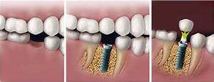 Dental Implant Single Tooth Replacement Miami  Fl