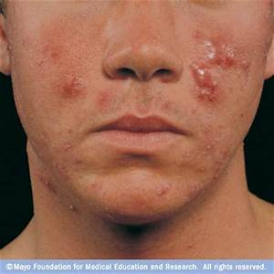 Acne Disease Reference Guide - Drugs.com