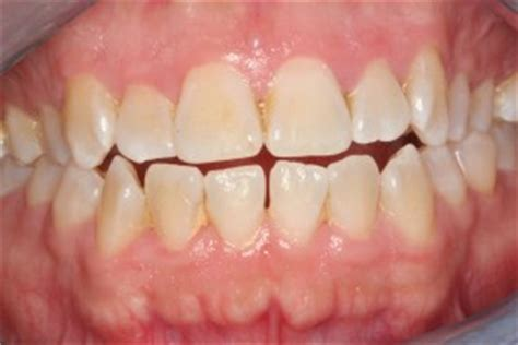 what color are your gums supposed to be stages of periodontal disease archives periopeak