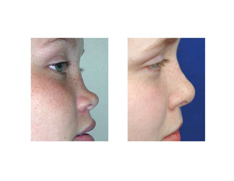 saddle nose deformity rhinoplasty archive 100 images