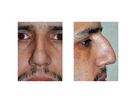 Home Remedies For Sinus Infection Clogged Ears Vertigo