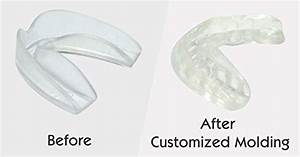 How To Mold A Perfect Mouthguard