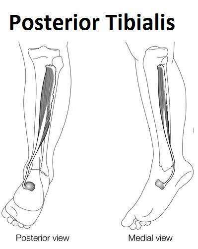 fibromyalgia fm falls stiff ankles contribute pain