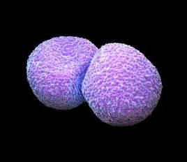 Pneumoniae Photograph - Streptococcus Pneumoniae Bacteria ... Streptococcus pneumonia Infection