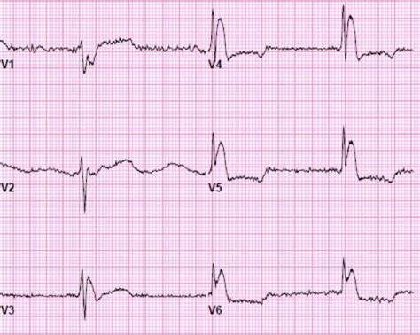 55 Year Old Male With Altered Mental Status, Hypothermia