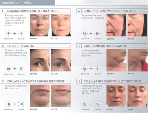 endermolift for face reviews
