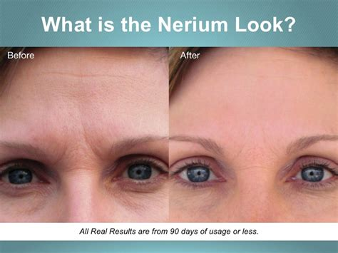 Nerium Scientific Breatkthrough Skincare  Brand Partners. Murray Insurance Agency Web Hosting In Google. Bariatric Surgeons Dallas Tx. Trade Schools In Vancouver Wa. Firefox Password Manager Miami Art University. New York Teachers Union Famous People With Ms. Assisted Living Austin Texas Honda Cbr 150. Drawstring Bags Wholesale No Service Verizon. How Do I Get A Google Voice Phone Number