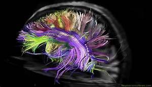 Brain Wiring A No-brainer