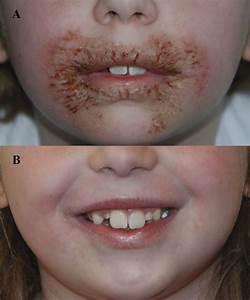 Methylisothiazolinone allergi