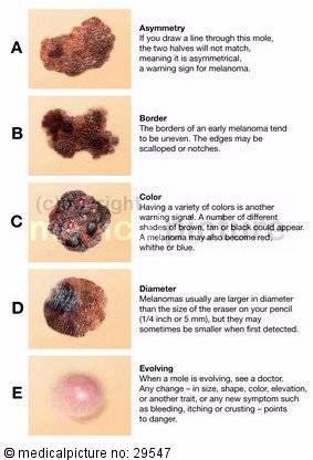 abcde regel zur hautkrebs erkennung doccheck pictures