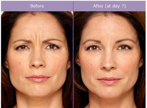 botox bilder vorher nachher fotos faltenbehandlung