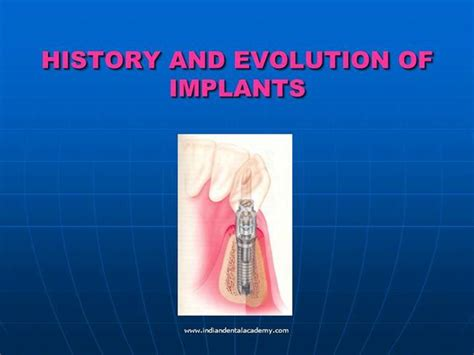 history and evolution of implants authorstream