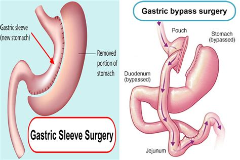 gastric sleeve reviews surgery complications recovery
