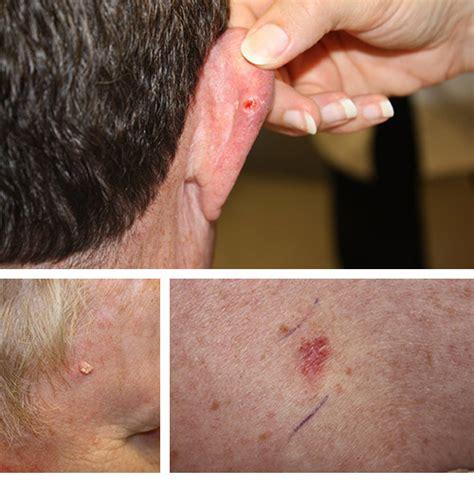 detecting  melanoma skin cancer  melanoma skin
