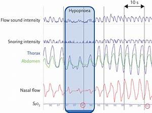 The Use Of Tracheal Sounds For The Diagnosis Of Sleep