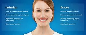 Invisalign - Princess City Dental