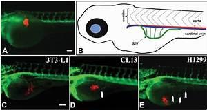 Tumor Angiogenesis In Transgenic Tg Flk1   Gfp  Zebrafish