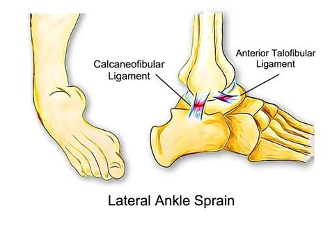 All Things Ankle Sprains - Mitcham Rehab
