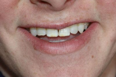 enamel hypoplasia bomstad dental