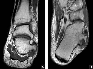 Complete Encasement of the Peroneal Tendons by the ...