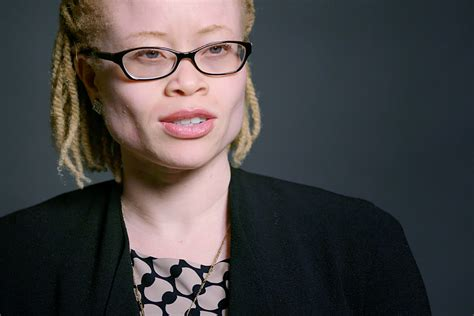 defending  human rights  people  albinism