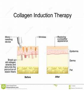 Collagen Induction Therapy Microneedling Stock Vector