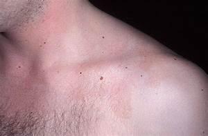 Как вылечить псориаз на коже головы
