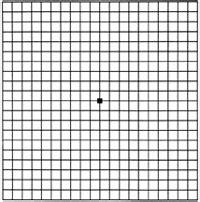 1st quadrant grid amsler gitter
