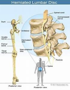 Medical Definition Of Nerve  Sciatic