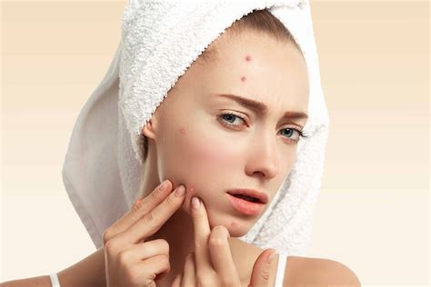Face Mapping The Ultimate Guide To What Pimples Signify