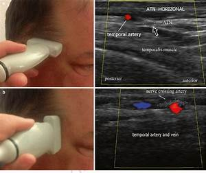 10 Ultrasound Evaluation Of The Auriculotemporal Nerve   A  Horizontal