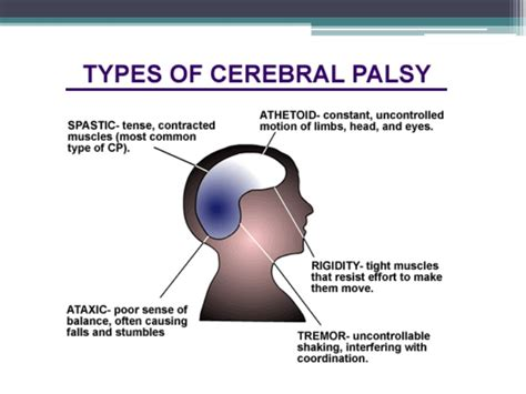 Cerebral Palsy Presentation. Verification Of Employment Form Template. Softball Tournament Flyer Template Free. Skills For Resume Example Template. Non Refundable Deposit Form Template. Resume Reference Page Sample Template. Themes For Microsoft Powerpoint Free Download Template. Microsoft Word Notebook Paper Template Image. Sample Teacher Reference Letter Template