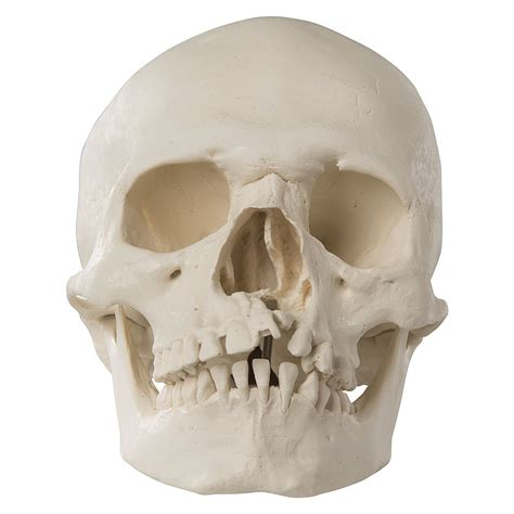 Human Skull Model With Cleft Jaw And Palate A293 25791