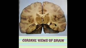 Brain Anatomy  Neuroanatomy