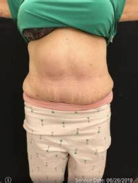 newark panniculectomy     delaware